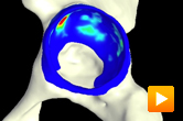 Predicted pressure of the pelvis visualized in PostView