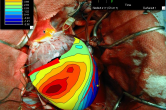 map3d overlay on in situ canine heart