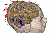 Inverse EEG - localizing the source of an epileptic seizure