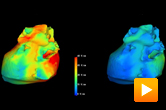 voltage gradient on the surface of the heart