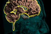 Level-set segmentation of the cerebral cortex - sagittal slice
