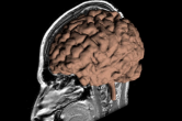 Level-set segmentation of the cerebral cortex
