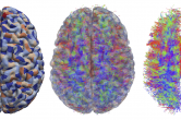 Structural analysis of diffusion tensor imaging