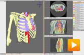 The Seg3D software package