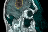 Level-set segmentation of a tumor - sagittal slice