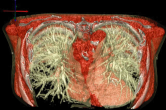 Visualizing a lung tumor with BioPSE