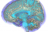 Quantifying uncertainty in brain scans