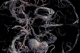 Extracting the vasculature of the brain - shown with massive aneurysm