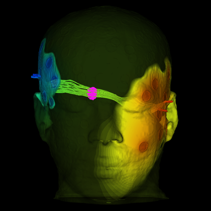 BrainStimulator is a set of networks that are used in SCIRun to perform simulations of brain stimulation such as transcranial direct current stimulation (tDCS) and magnetic transcranial stimulation (TMS).