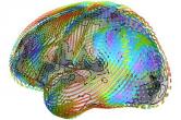Superquadric glyphs for diffusion tensor imaging