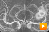 MRA flythrough showing a large aneurysm
