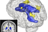 White matter lesions (yellow) segmented with ventricles (blue)