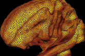 Dynamic particle system - isosurface on a brain
