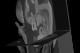 MicroCT cutaway of an embryonic mouse