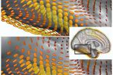 Comparison of superquadric glyphs for diffusion tensor imaging