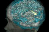 High resolution mesh of the brain