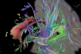 Diffusion tensor imaging with superquadric glyphs