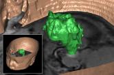 Segmentation of a brain tumor - initial diagnosis 1999