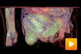 Oncology - patient flow