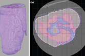 segmenting tissue structure for osseointegration of an amputee