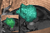 Segmentation of a brain tumor - presurgery 2001