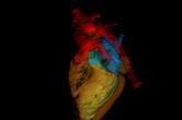 Segmented volume of a heart
