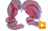 Shape analysis - matching brain sub-structure