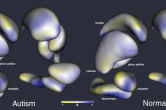 Shape analysis between normal and autistic brains