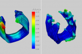 DTI tractography comparison with Fiber Viewer